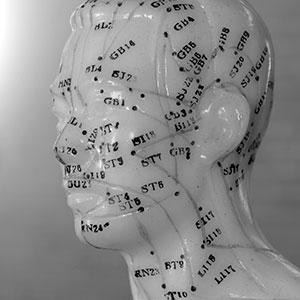 wat is acupunctuur
